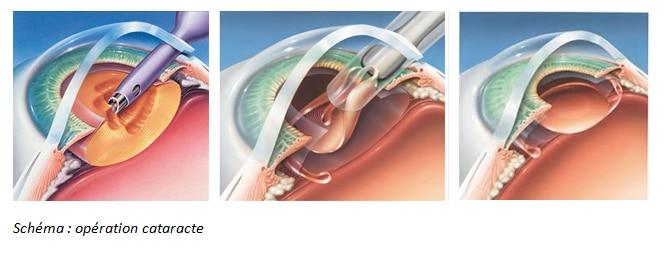 cataracte-chirurgie
